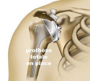 pathologies-epaule-prothese