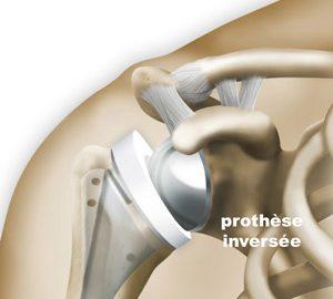 pathologies-epaule-prothese-inversee